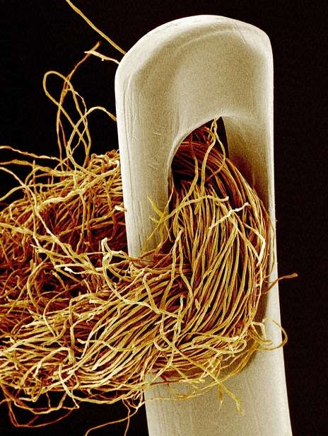 Amazing Microscopic Photography