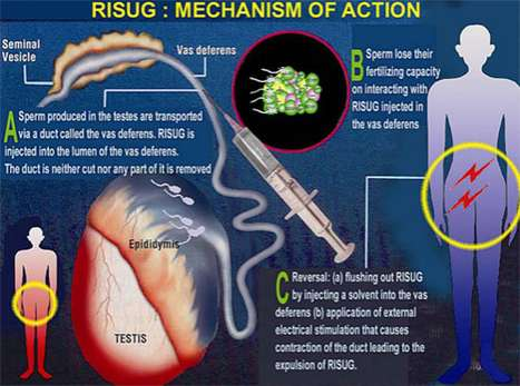 RISUG Procedure
