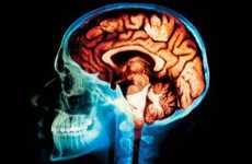 Matrix-Like Brain Implants