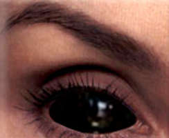 Top 8 Innovations For Your Eyes (Including Creepy Contact Lenses)