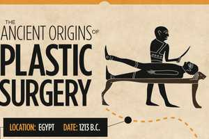 The 'Ancient Origins of Plastic Surgery' Infographic is Historic