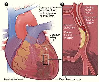 Potential Treatment For Heart Attack Victims