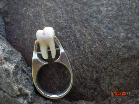 Human Tooth Ring