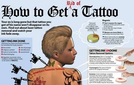 Get Rid of a Tattoo