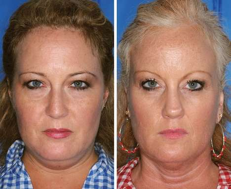 facial changes caused by smoking