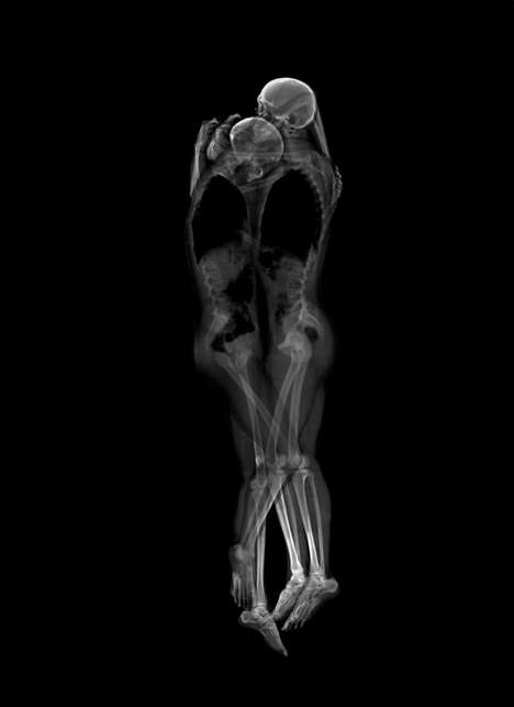 Romantic Skeletal X-rays - These X-ray Portraits of Couples Show a Deep Level of Intimacy