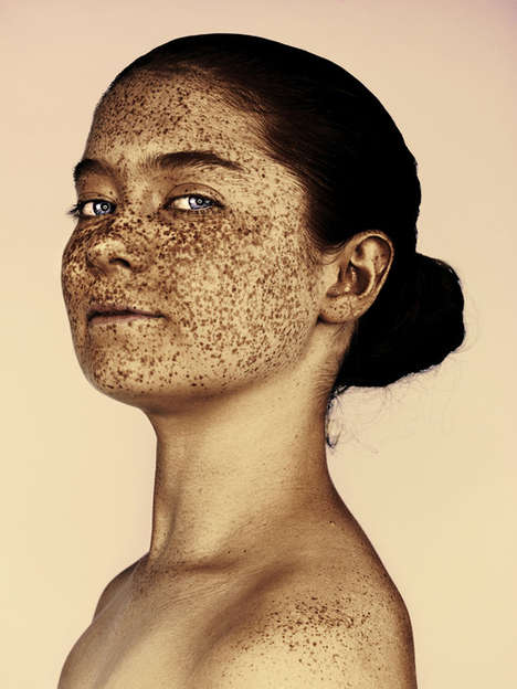 Sun-Spotted Portrait Series - Mr. Elbanks Captures Photos of Freckled-Face Subjects