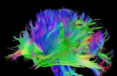 Psychedelic Brain Images