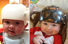 These Head-Shaping Helmets Help Shape Babies Heads and Look Cute