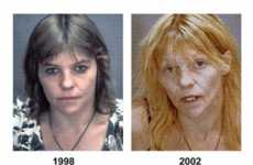 Before and After Drug Use Photos - Shocking Anti-Meth Campaign