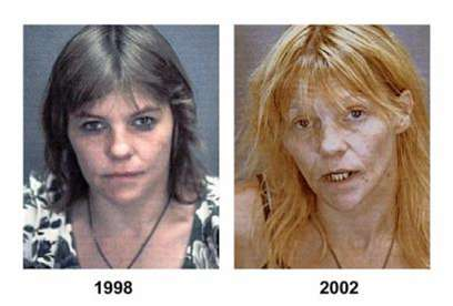Before and After Drug Use Photos