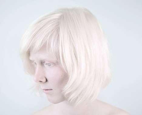 Beautiful Albino Portraits