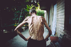 Maxim Dondyuk Chronicles the TB Epidemic in Ukraine
