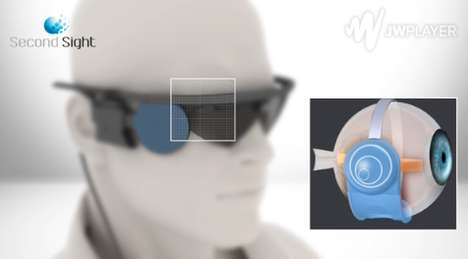 Bionic Eye Implants - Second Sight's Argus II Gives The Gift of Vision to the Blind