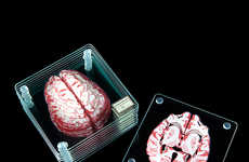 Brain Specimen Coasters - This Glass Coaster Set Creates a 3D 'Scan' of the Human Brain
