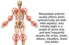 Arthritic Innovations
