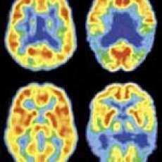 Consumer Brainwaves