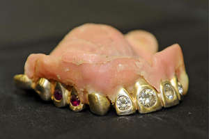 Gold, Diamond and Ruby-Studded False Teeth