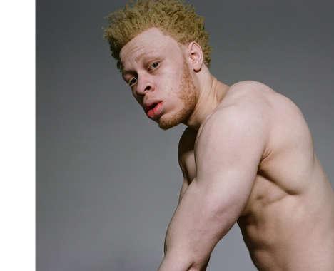 Inclusive Albino Editorials