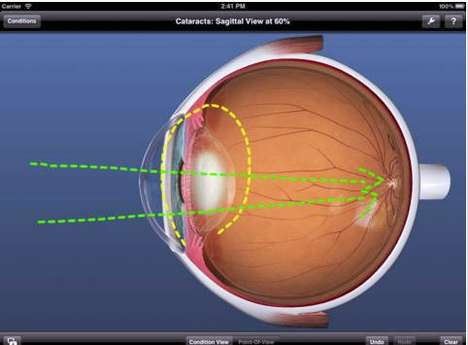 Optometrist-Assisting Apps - This Eye Care App Helps Doctors Decipher Various Sight Conditions