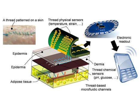 Data-Driven Medicines - 'Smart Sutures' Can Collect and Send Data About Patient Recovery
