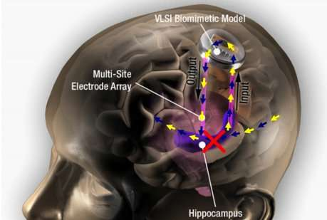 Memory-Enhancing Devices - The Tiny Device from 'Kernel' Improves the Function of the Hippocampus