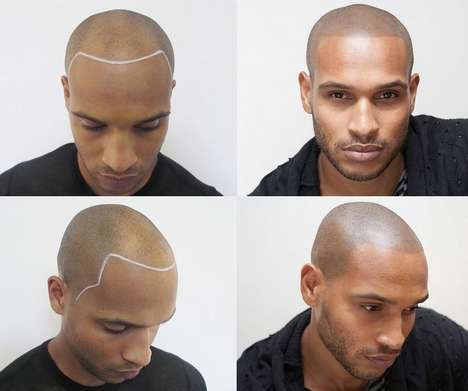 Simulated Hair Tattoos - The Scalp Micro-Pigmentation Recreates Hair Follicles Using Ink
