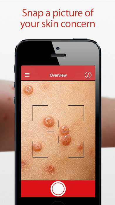 STI Skin Infection Apps - The 'STD Triage' App Helps Identify Skin Infections in Under 24-Hours