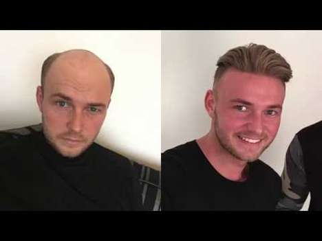 Modern Non-Surgical Hair Replacements - Quiff & Co. Hair Replacements Look and Act Like Real Hair
