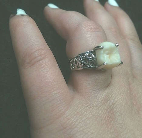 Romantic Wisdom Tooth Rings - This Couple Celebrated Their Engagement in an Unconventional Way