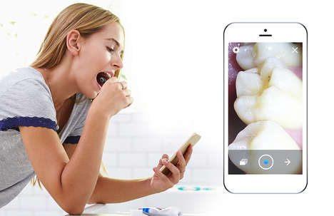 Oral Dental Care Cameras - The 'MTG' Dental Camera Lets Users Keep an Eye on Their Teeth