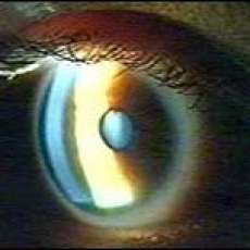 Bionic Eye Restores Sight to the Blind