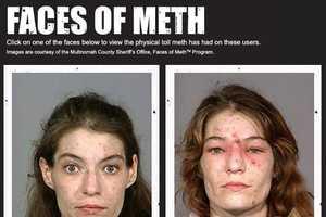 Celeb Zombies Made from Methamphetamines