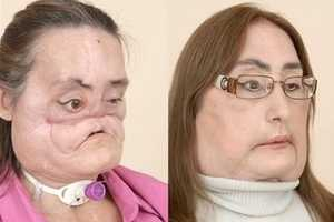 Connie Culp Shares Her Face Transplant Tale With Laughter