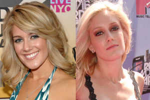 Before and Afters of Stars Who Have Undergone Cosmetic Surgery