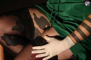 Priscilladavanzopics Secures Her Tights By Stitching into her Skin