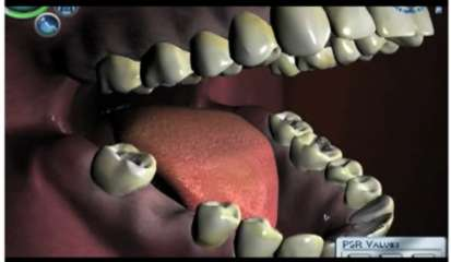 Dentists as Gamers - Virtual Reality Used to Simulate Dental Implantations