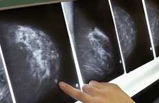 Treatment Could Allow Women to Regrow Breasts After a Mastectomy