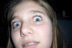 'When I Had Braces' Chronicles the Orthodontically Awkward