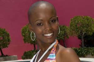 Miss Tanzania Has No Hair