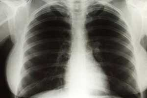 The Marilyn Monroe Chest X-Rays Sold to a Dedicated Fan