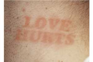 Hickytats' Hickey Tattoo Lets You Personalize Your Bruising Brand