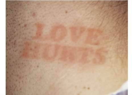 Hickytats hickey tattoo