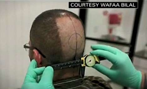 wafaa bilal head implanted camera
