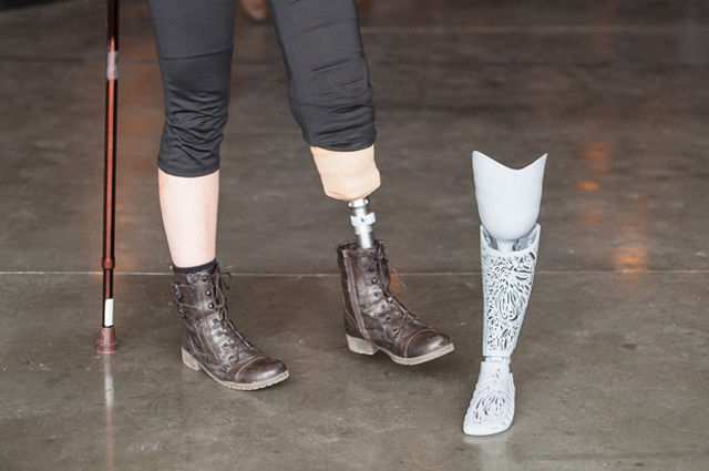 Ornately Printed Prosthetics