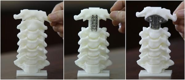 3D-Printed Spinal Surgeries