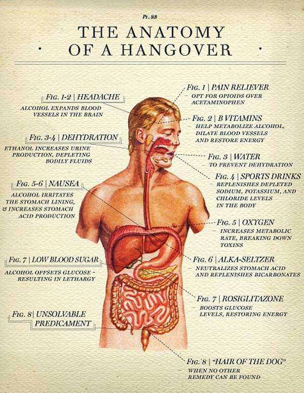 anatomy of a hangover
