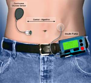 External Organ Helpers Artificial Pancreas For