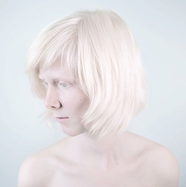 Beautiful Albino Portraits