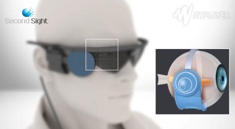 Bionic Eye Implants